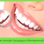 Как проходит процедура отбеливания зубов