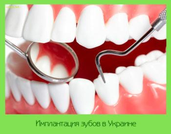 Имплантация зубов в Украине