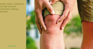 Ушиб колена, коленного сустава причины, симптомы и методы лечения
